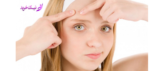 درمان جوش های پوستی با چند روش ساده در منزل